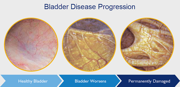 Bladder Disease Progression2