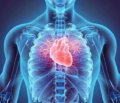 Heart Xray Image - 400px