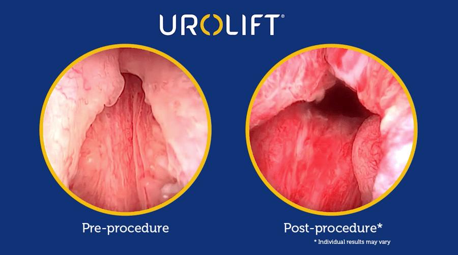 pre-post-procedure-typical