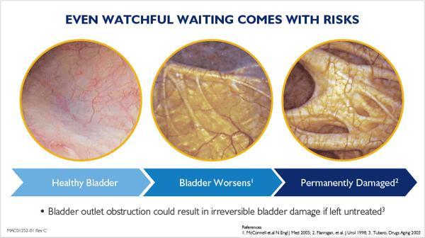 watchful waiting risks - bladder